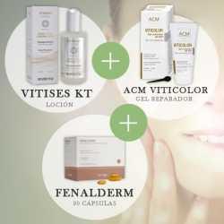 Tratamiento Vitíligo Vitises KT + Fenalderm + maquillaje vitíligo